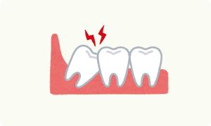 イラスト:歯