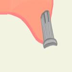 GBR(骨誘導再生法)