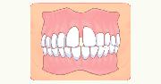 イラスト:すきっ歯が目立つ