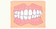 イラスト:歯が噛み合わない