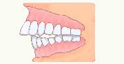 イラスト:出っ歯が恥ずかしい