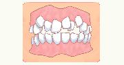 イラスト:歯並びがデコボコ
