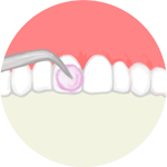 フッ素塗布で歯質を強化